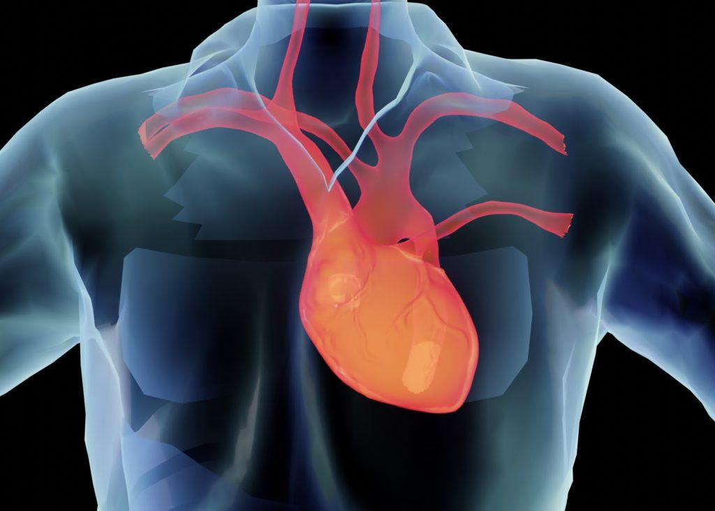 myocardial infarct
